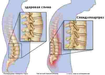 лечение боли в пояснице при спондилоартрозе